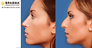 Website at https://www.sparha.in/nose-reshaping.html