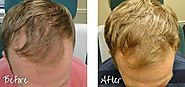 Hair Restoration Portland Oregon | Solution for Hair Loss