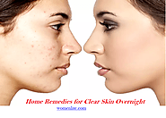Follow Some Simple Steps to Clear Skin Overnight With Womenlite