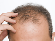 Home Remedies for Hair Fall - Causes, Symptoms, Home Treatment