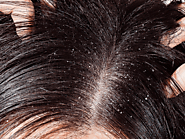 Home Remedies For Dandruff - Causes, Symptoms and Prevention