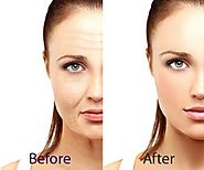 Anti Ageing Treatment in Delhi –SMUK