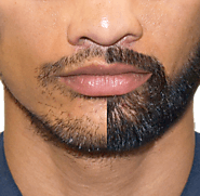 SMUK - Facial Hair Transplant in Delhi