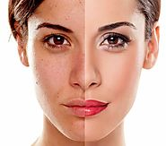 SMUK - Skin Pigmentation Treatment