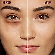 Get Dark Circle Treatment in Delhi at SMUK