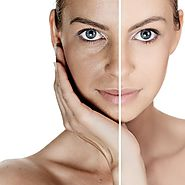 SMUK - Dull Skin Treatment in Delhi