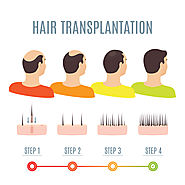 Hair Transplantation Hyderabad | Hair Transplant Surgeon | hair replacement clinic in Hyderabad