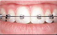 Website at https://southexdental.com/our-services/braces/