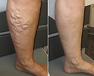Varicose Veins Treatment Near You in Philadelphia!