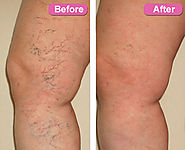 A Preventive Course Of Action For Varicose Veins And Spider Veins
