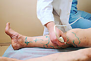 Varicose Vein Therapy Fixes The Appearance And Functionality Of The Veins