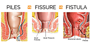 What are piles and fissure, its symptoms and cure?