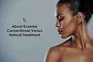 About Eczema: Conventional Versus Natural Treatment