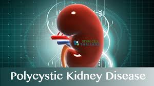 Headline for Polycystic Kidney Disease Treatment Reviews and Ratings 2016