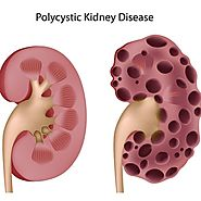 Treatment Options on Polycystic Kidney Disease 2016