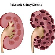 Top Treatment Options on Polycystic Kidney Disease 2016