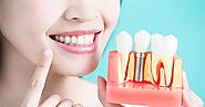 Good Oral Health Offers An Everlasting Smile Bringing In A Better Feel