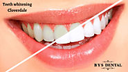 Learn 5 Integral Teeth Whitening Safety Tips - Brick Yard Station Dental
