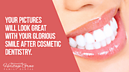 • Your pictures will look great with your glorious smile after cosmetic dentistry.