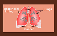 Mesothelioma Cure: Types of Mesothelioma, Stages, Causes, Symptoms