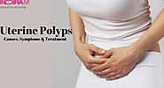 Uterine polyps - Causes, symptoms and treatment for this problem