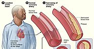 Your Health Solutions: Coronary Heart Disease (CHD)