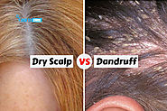 Dandruff vs Dry Scalp - The Difference and Treatment | How to Cure