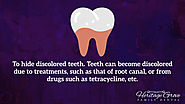 • To hide discolored teeth. Teeth can become discolored due to treatments, such as that of root canal, or from drugs ...