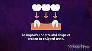 • To improve the size and shape of broken or chipped teeth.