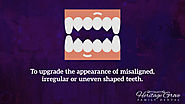 • To upgrade the appearance of misaligned, irregular or uneven shaped teeth.