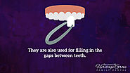 • They are also used for filling in the gaps between teeth.
