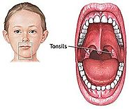 Tonsillitis- How to Get rid of tonsils - Home remedies for tonsils