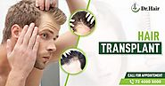 Know More About Follicular Unit Transplant from the hair specialist in jaipur