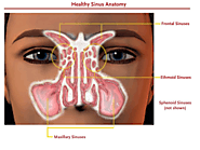 ENT Sinus Specialist Doctor and Treatment in Singapore | Sinusitis