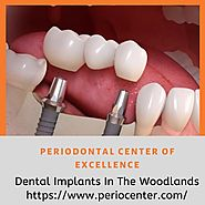 Dental implants in the woodlands | Perio Center