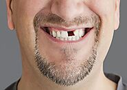 "Tooth Loss and ""Sunken in"" Facial Features 