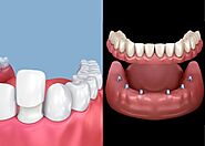 Dental Veneers vs. Dental Implants | PCE