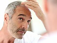 Hair Loss Treatments for Men: 17 Hair Loss Remedies