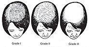 Female pattern hair loss: Current treatment concepts