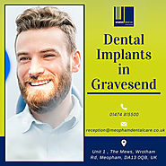 Dental Implants in Gravesend