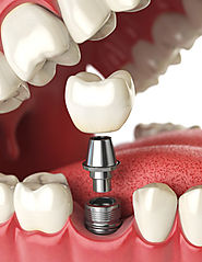 Dental Implants Dartford