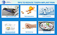 Tips to reduce tooth implant pain