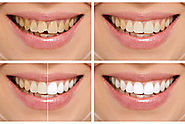 Cosmetic Dentistry: Do You Want To Smile Like A Star?