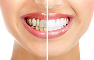 10 Most Common Tooth Related/Dental Problems and Solutions