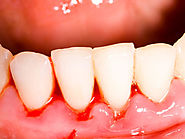 What is Teeth Cleaning/Scaling: How it is Important ?