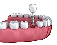 Dental Implants in Ahmedabad | Dental Implant Cost in Ahmedabad