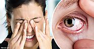 Prevent Dry Eyes Syndrome
