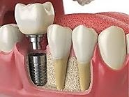 What Are The Advantages Of Dental Implants