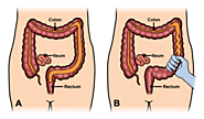 Best Homeopathic Doctor & Treatment for Irritable Bowel Syndrome India