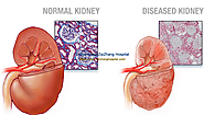Alternative Treatment to Dialysis for Kidney Failure Caused by Hypertension
